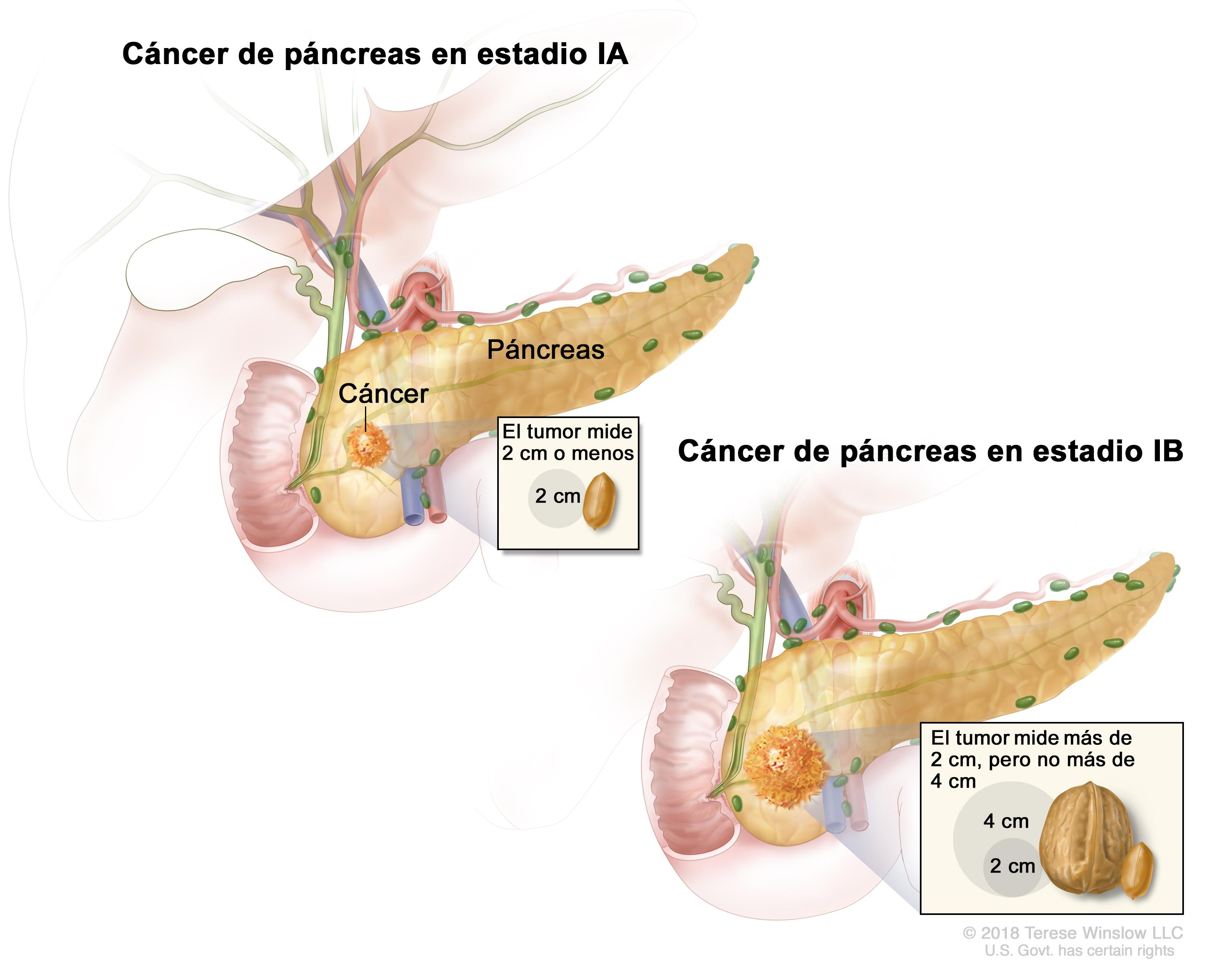 cancer de pancreas que lo origina ovarian cancer jelly belly