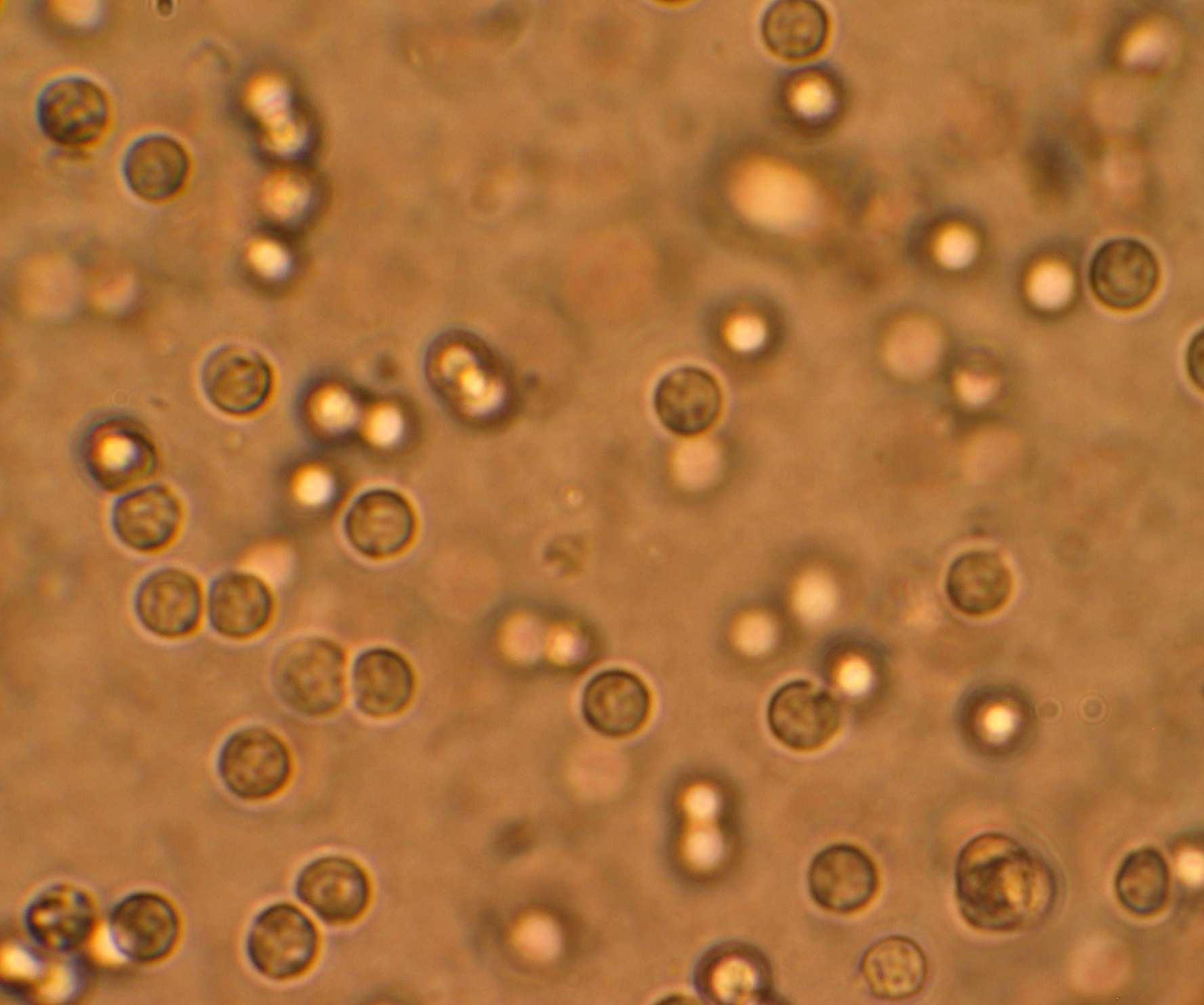bacterii in urina la copii