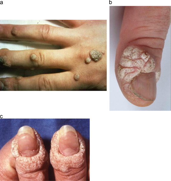 human papillomavirus infection on finger papilloma virus uomo come si diagnostica