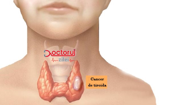 can hpv virus cause thyroid cancer