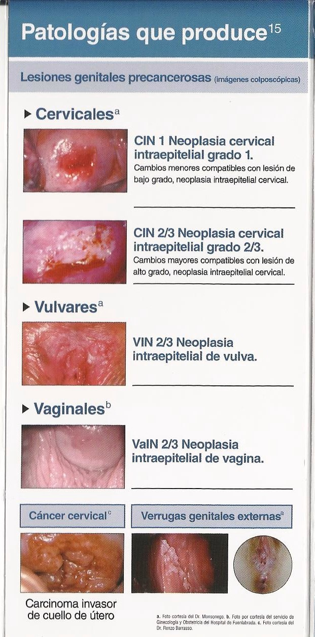 papiloma en ginecologia papilloma breast definition