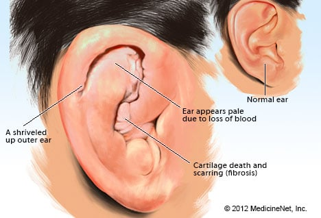 hpv symptoms ear toxine mortel en 7 lettres