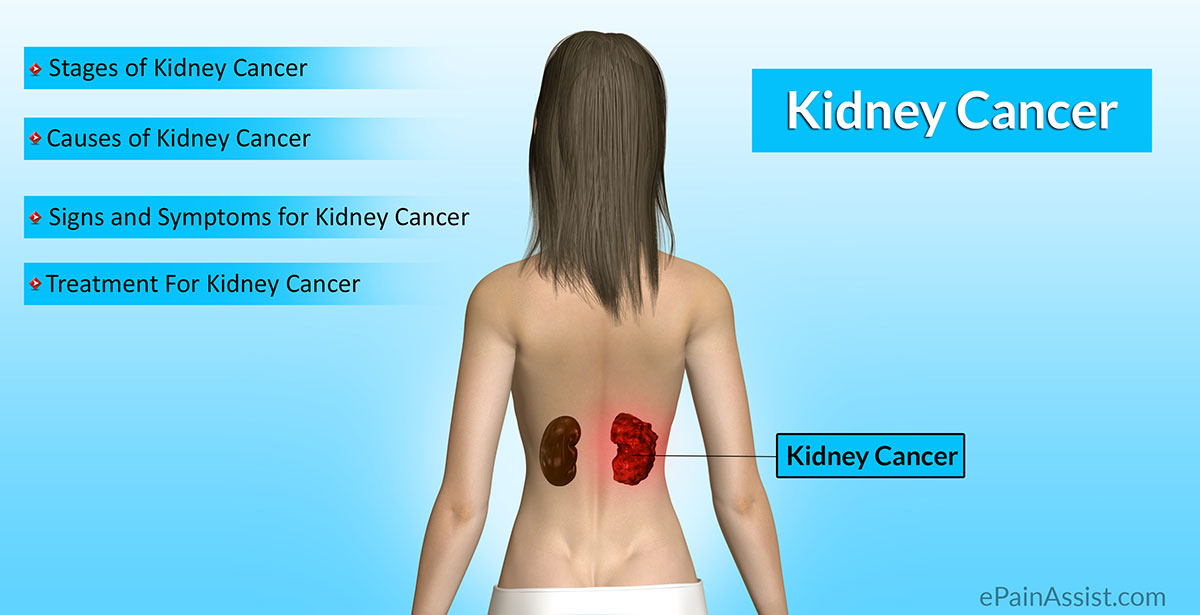 renal cancer tests