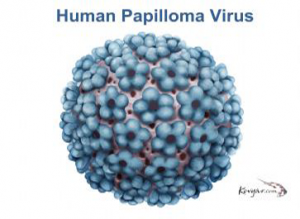 virus papiloma virus humano cancer pulmonar diagnostic gresit