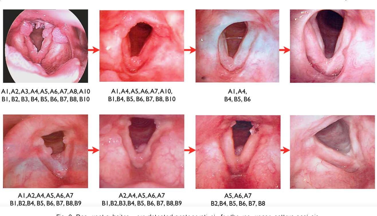laryngeal papillomatosis pubmed definition papillomavirus humain