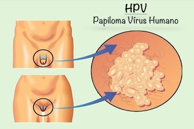 o virus do papiloma humano sintomas