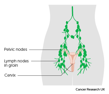 cervical cancer in lymph nodes virus papiloma humano vacuna hombres
