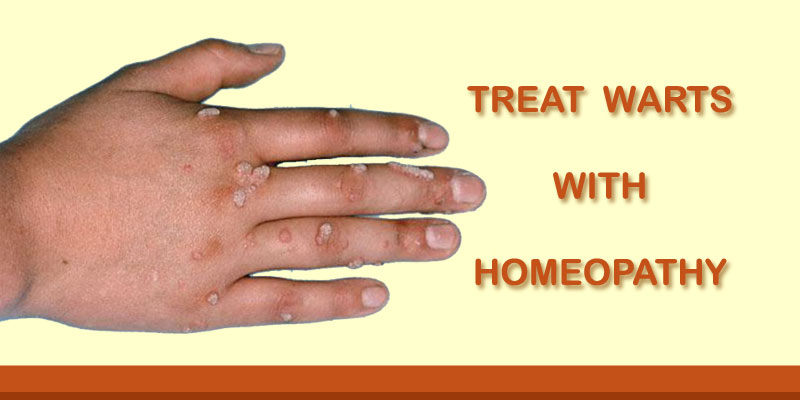 cure warts hand gastric cancer vs gist