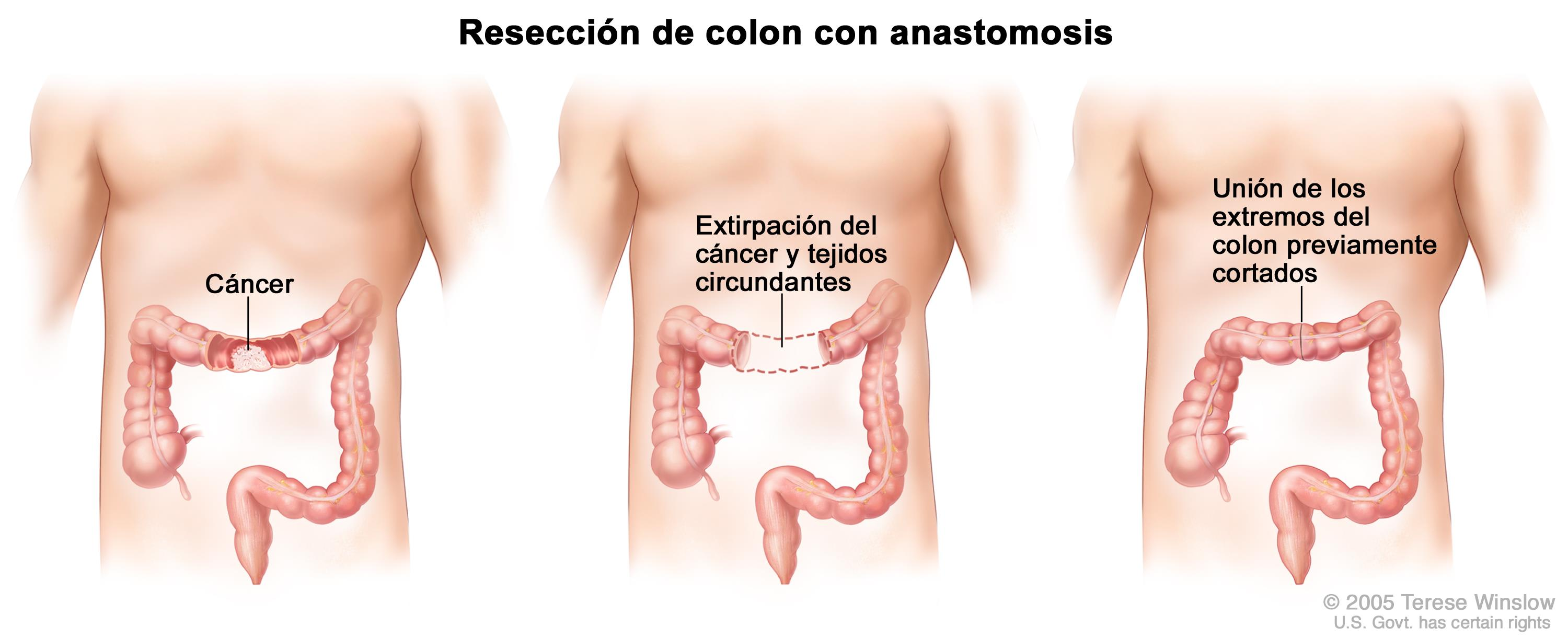 cancer de colon se cura