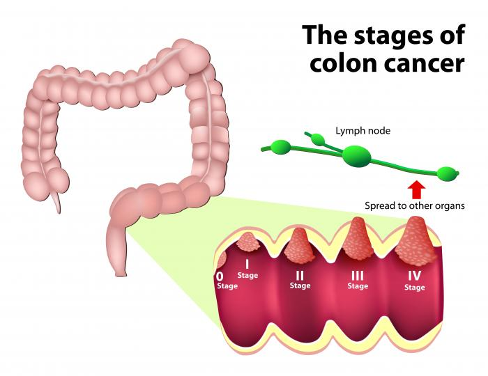 cancer colorectal causes recurrent respiratory papillomatosis causes