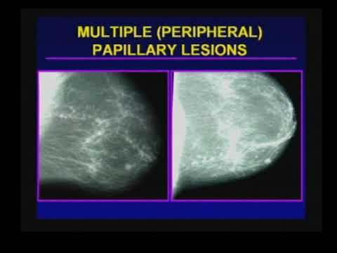 papilloma lesion in breast simptome cancer la colon