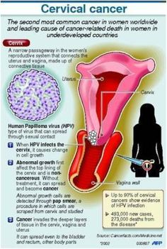 hpv causes ovarian cancer home remedy for papilloma