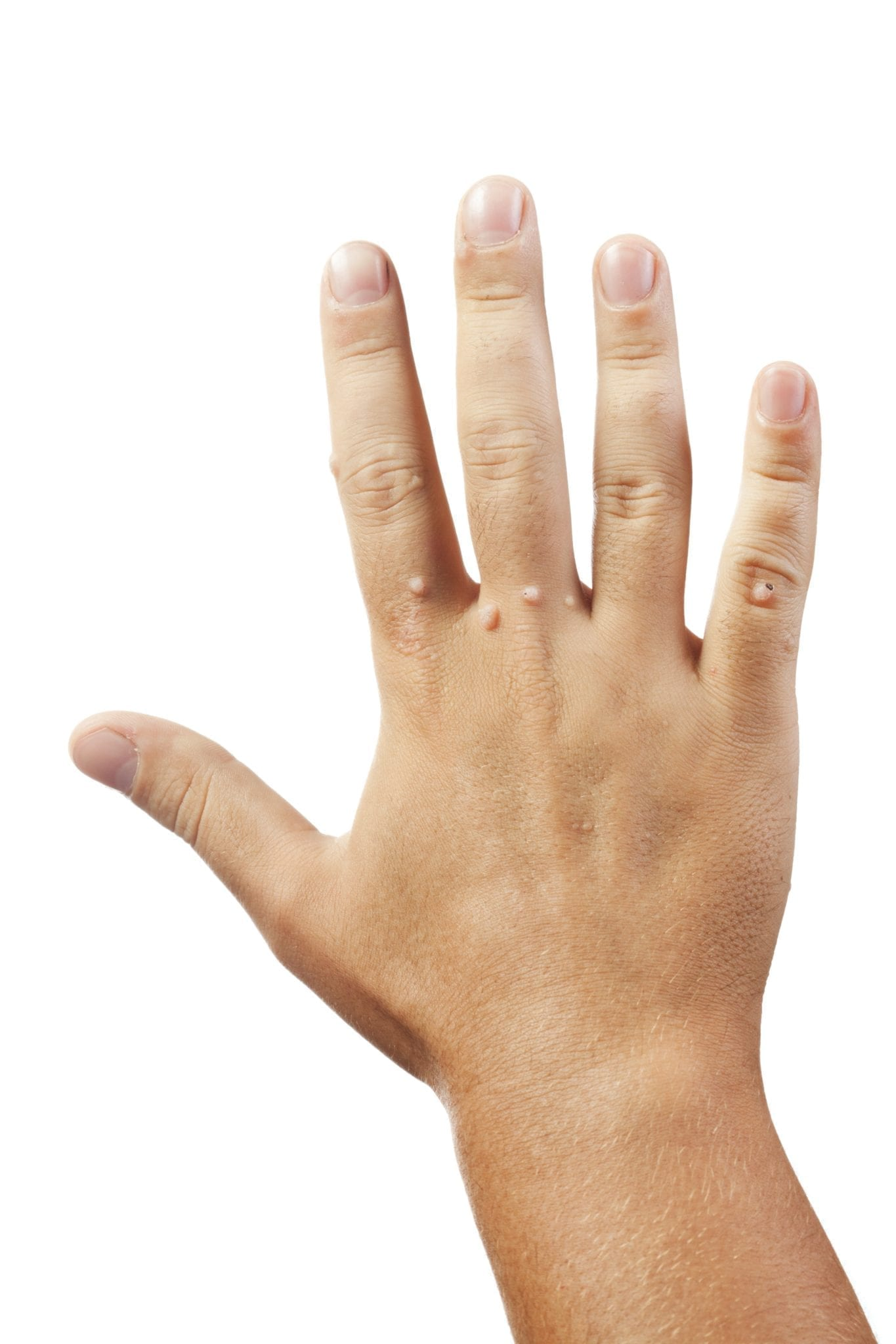 warts on hands treatment