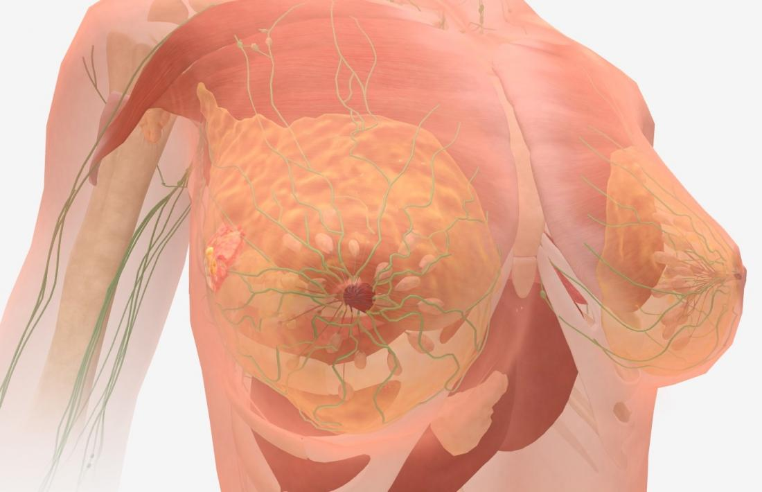 metastatic cancer how long can you live