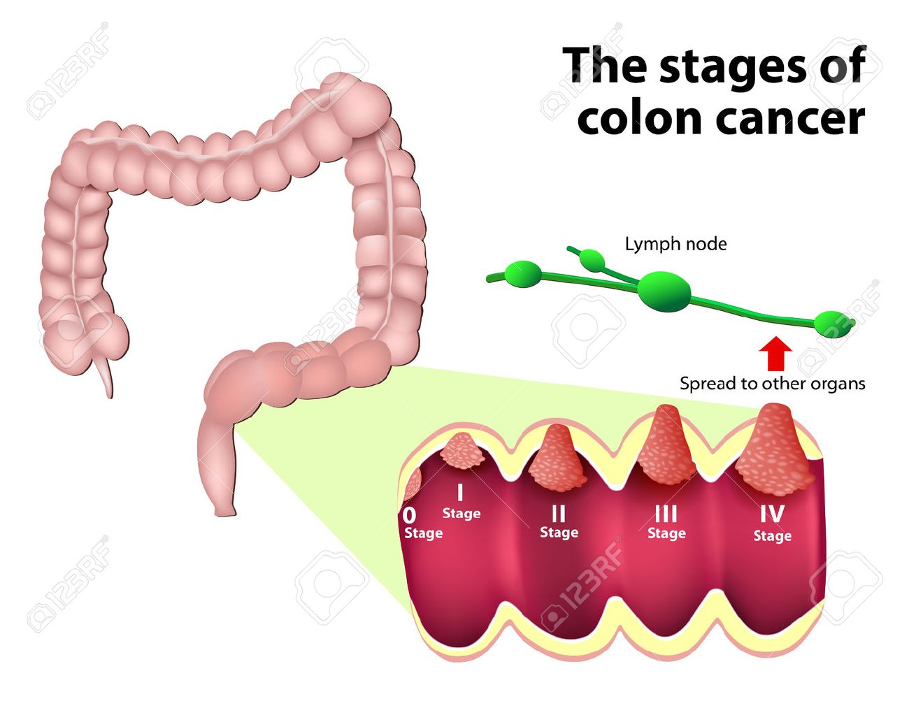 cancer colon que comer enterobius vermicularis k?l kurdu
