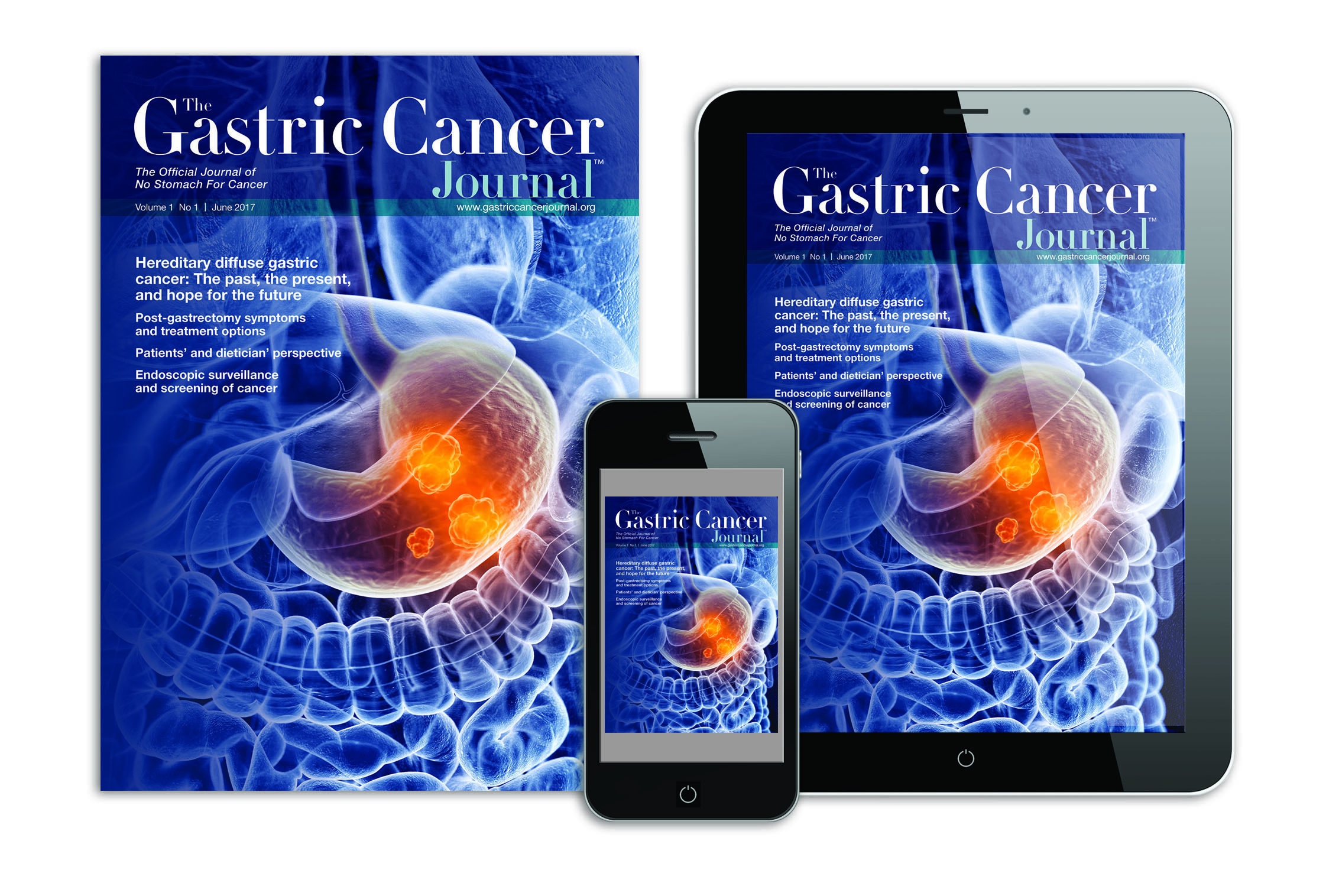 gastric cancer journal