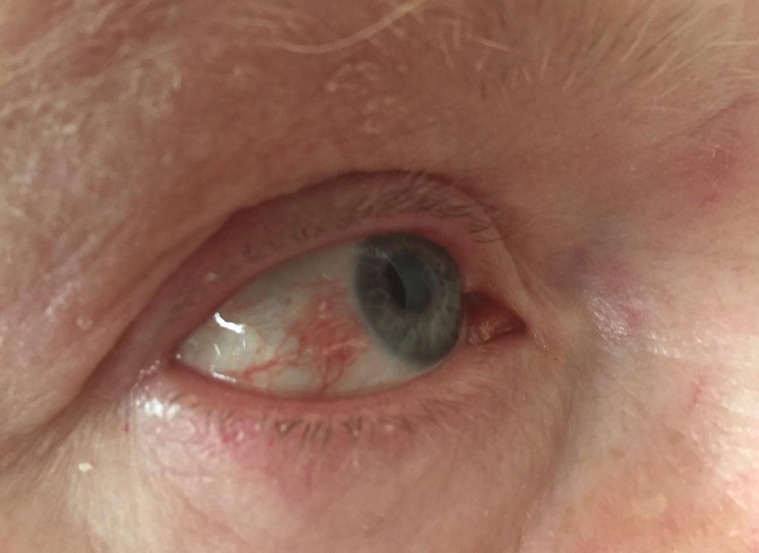 hpv and eye