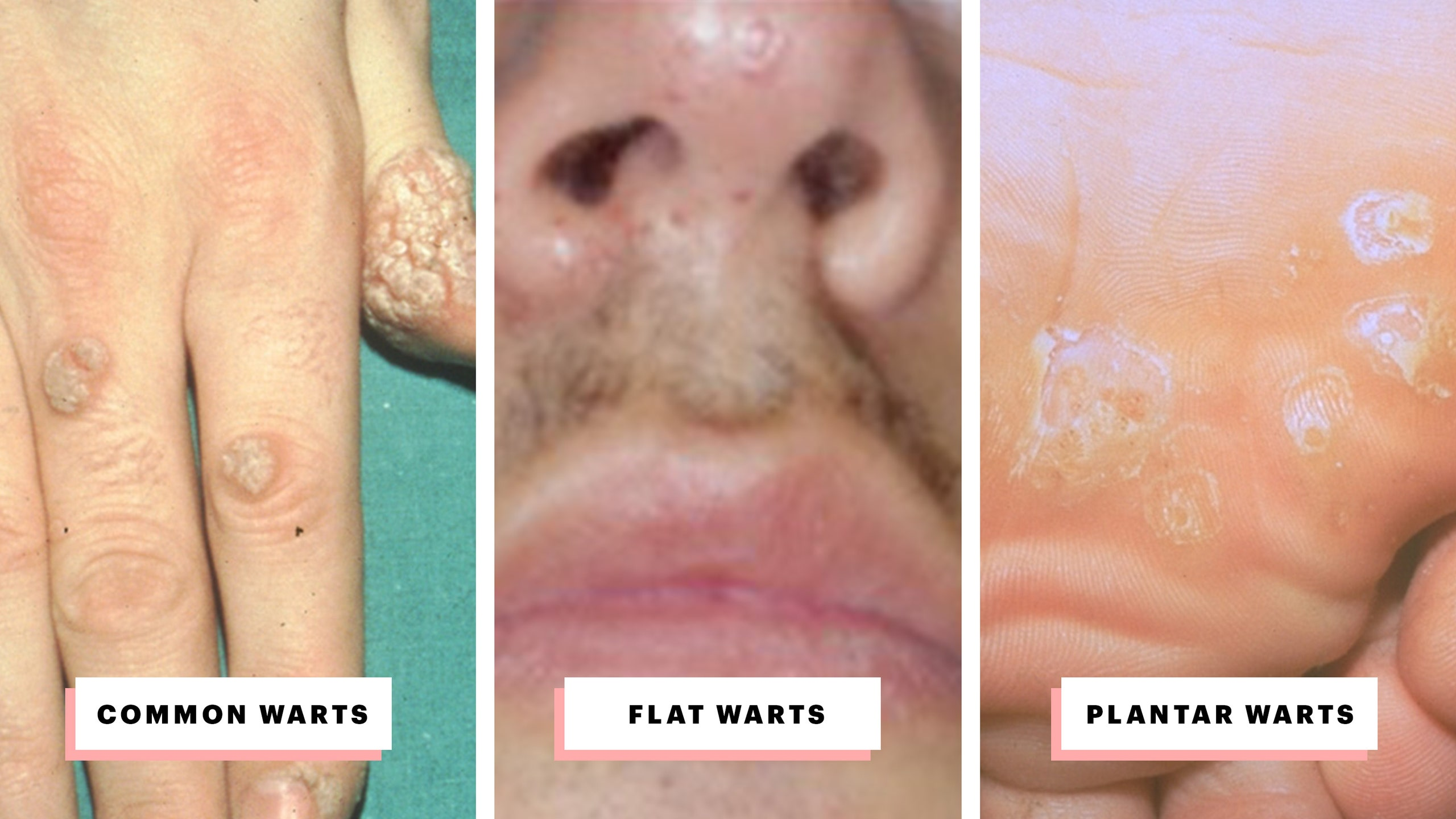 hpv hair removal
