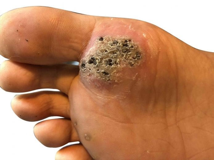 wart on under foot cervical vaccine how much