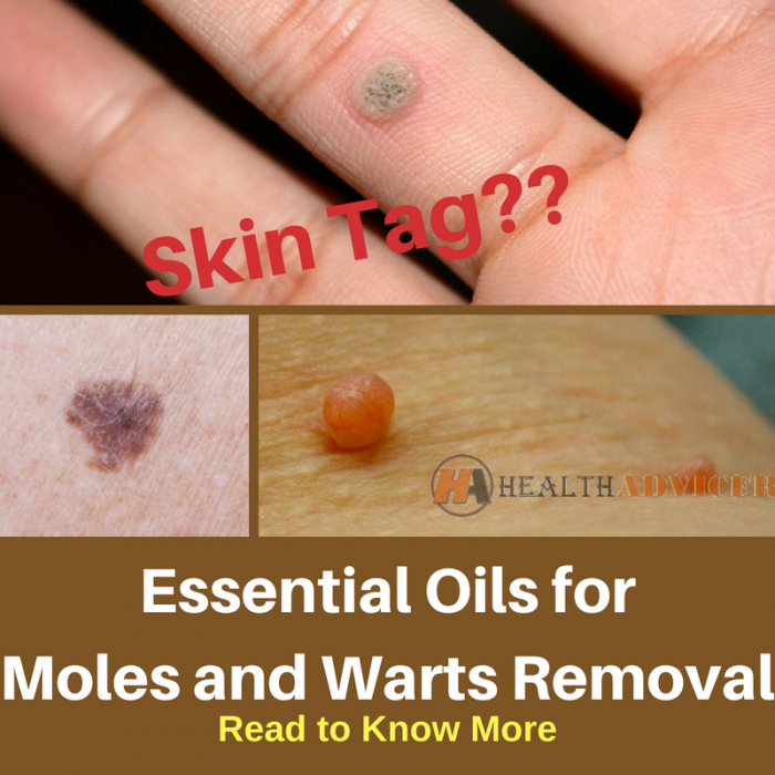 hpv warts essential oils intraductal papilloma icd 10 code