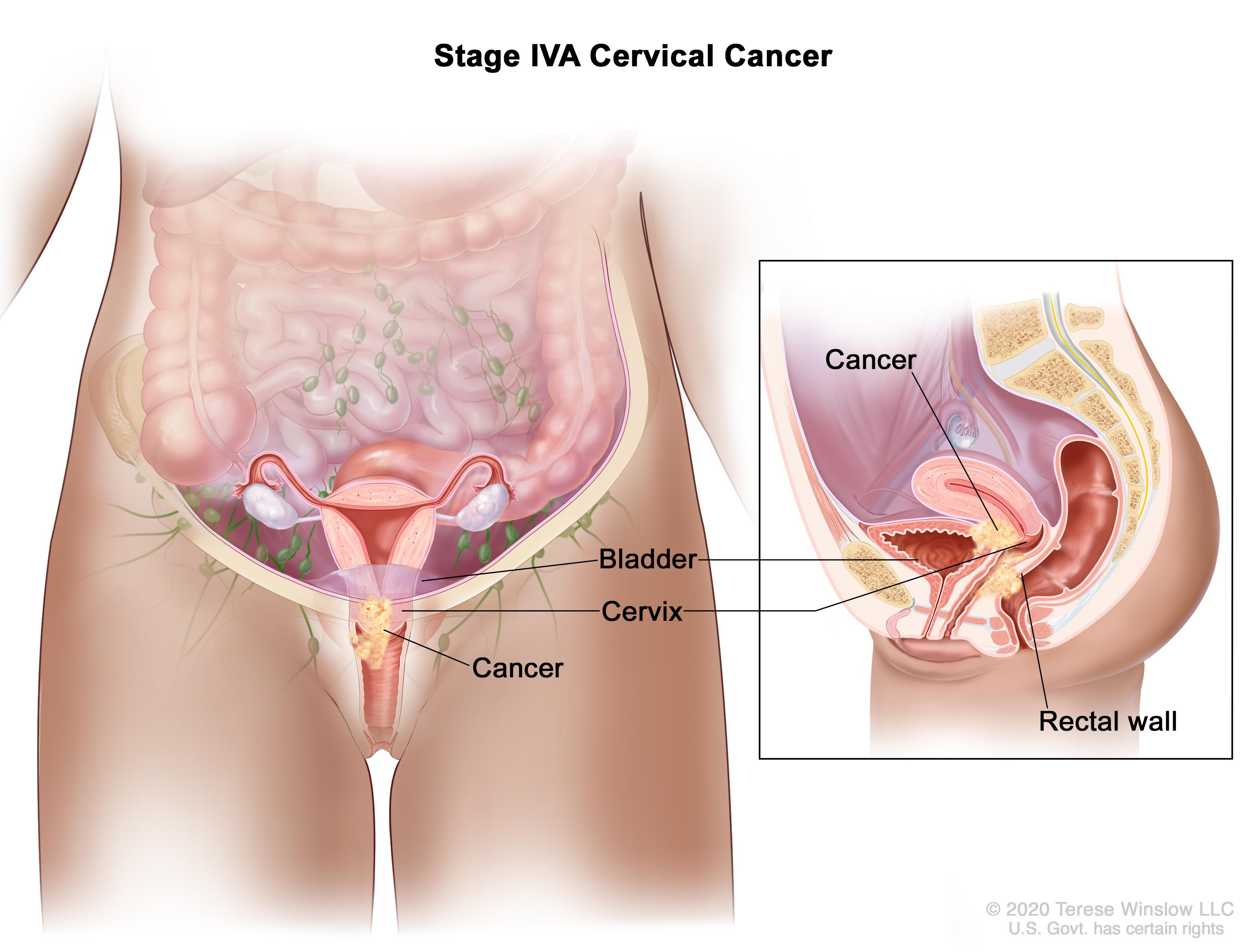 cervical cancer effects on the body respiratory papillomatosis icd 9