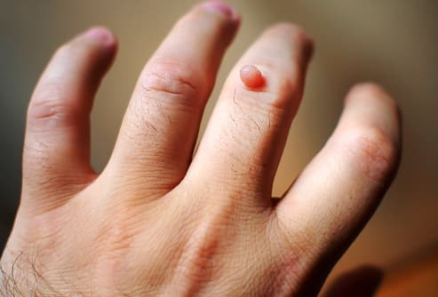 breast cancer genetic causes hpv and finger warts