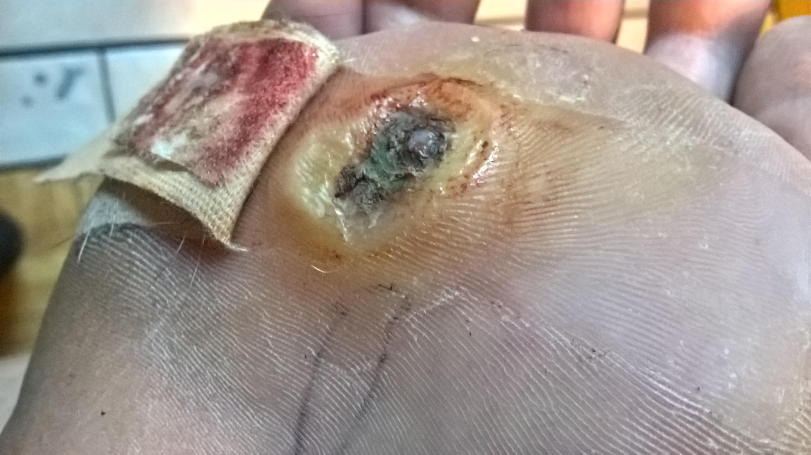 wart treatment gone wrong papilloma virus uomo come si cura