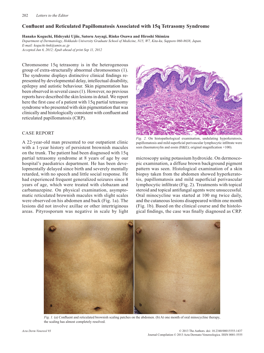 intraductal papilloma american cancer society laryngeal papillomatosis syndrome
