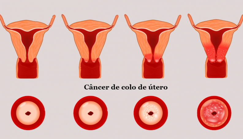 hpv no utero hpv test definition