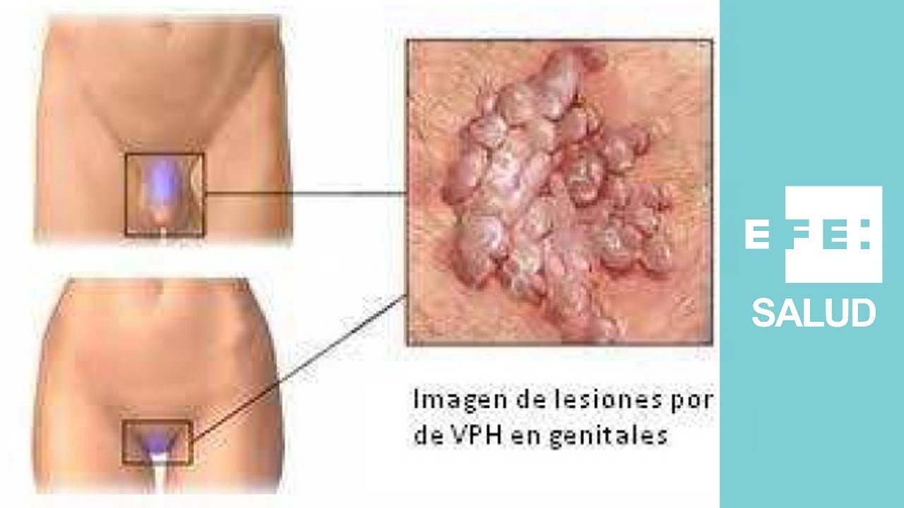 infection a papillomavirus chez lhomme define helminthiases