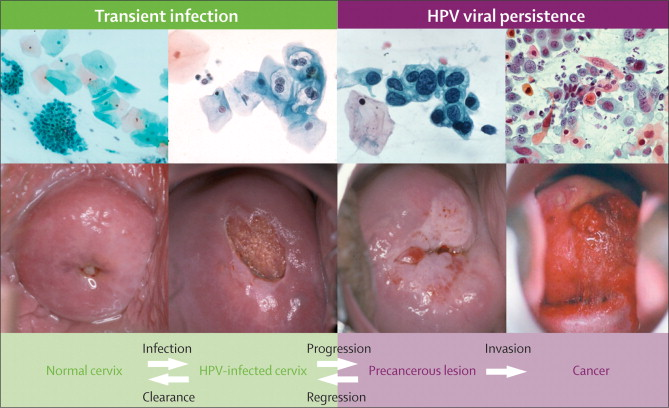 is hpv and precancerous cells the same gastric cancer frequency