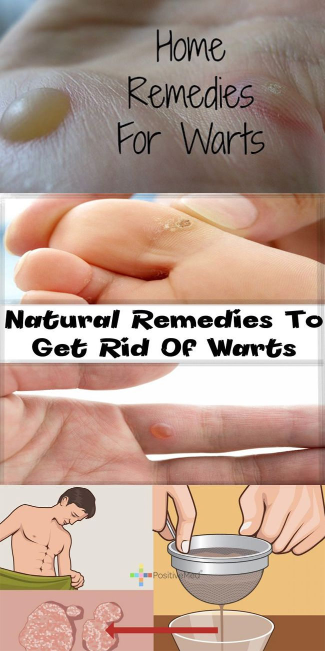 warts on foot home treatment warts on hands how to get rid of them