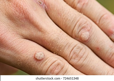 warts on hands fingers