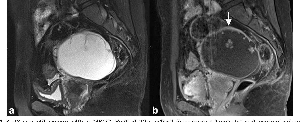ovarian cancer on mri