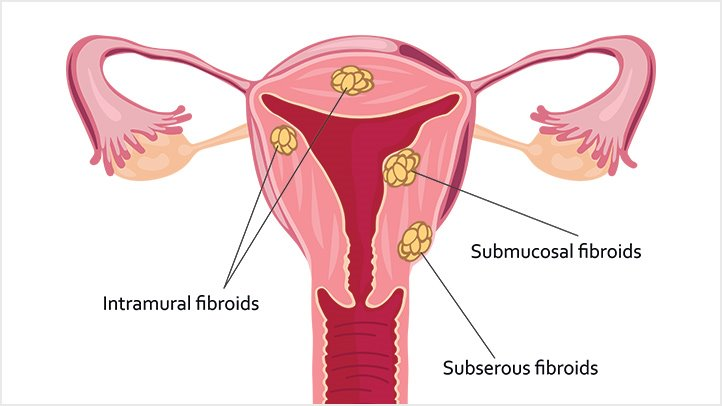 cancer uterine fibroids antihelmintice naturale