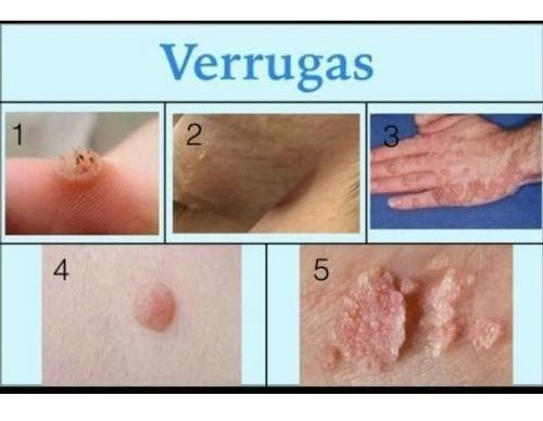 papiloma palpebral causas how hpv causes cancer