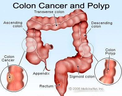cancer colon cause
