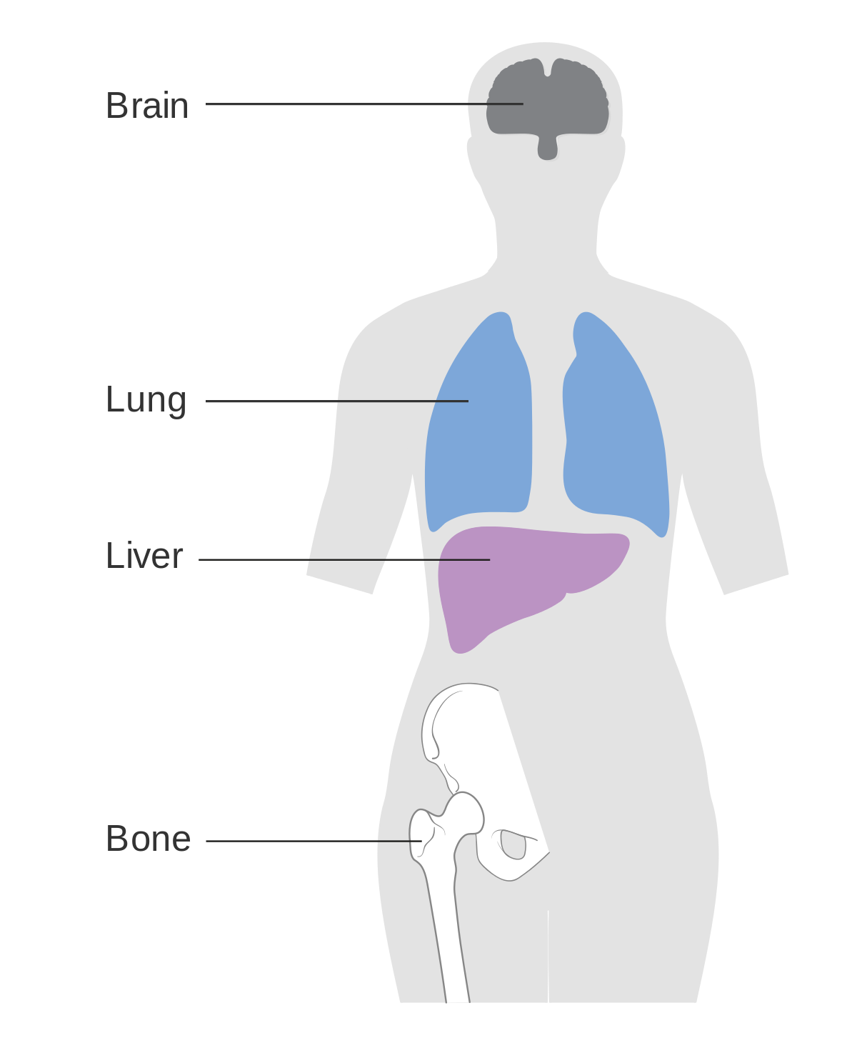 sarcoma cancer spread to lungs papillary lesion tongue