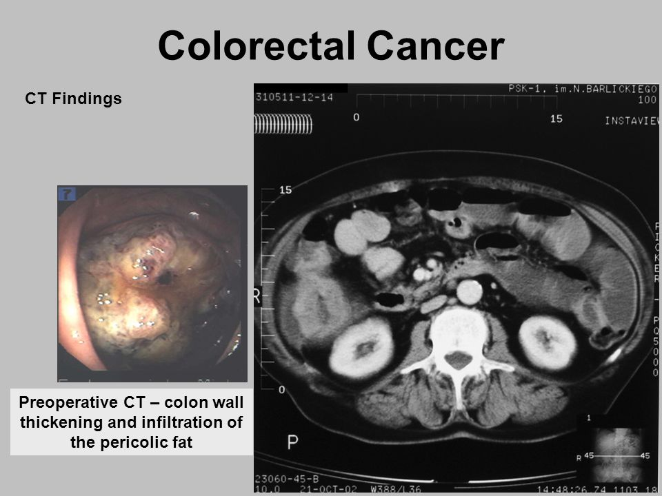 colorectal cancer on ct scan