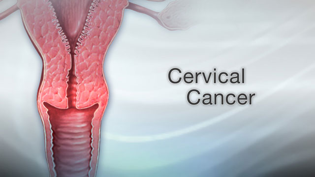 genital warts and cervical cancer papilloma al seno c3
