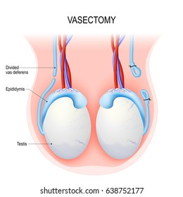 cancer testicular vasectomia sarcoma cancer gifts