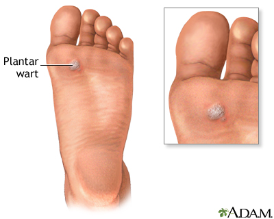wart on foot why papiloma palpebral causas