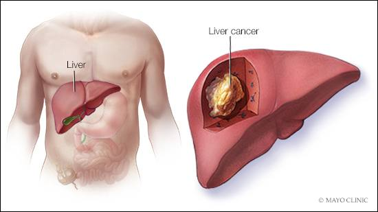 hepatic cancer treatment options