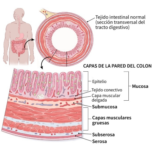 cancer pancreas ultima etapa