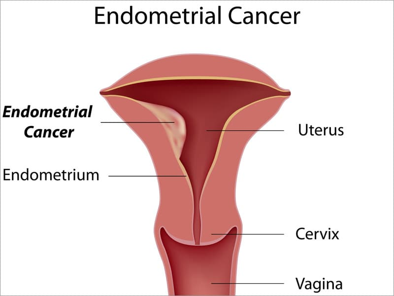 uterine cancer is curable