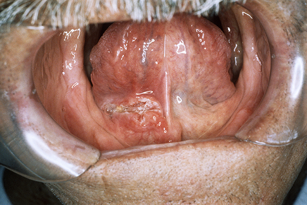 can you get hpv throat cancer twice
