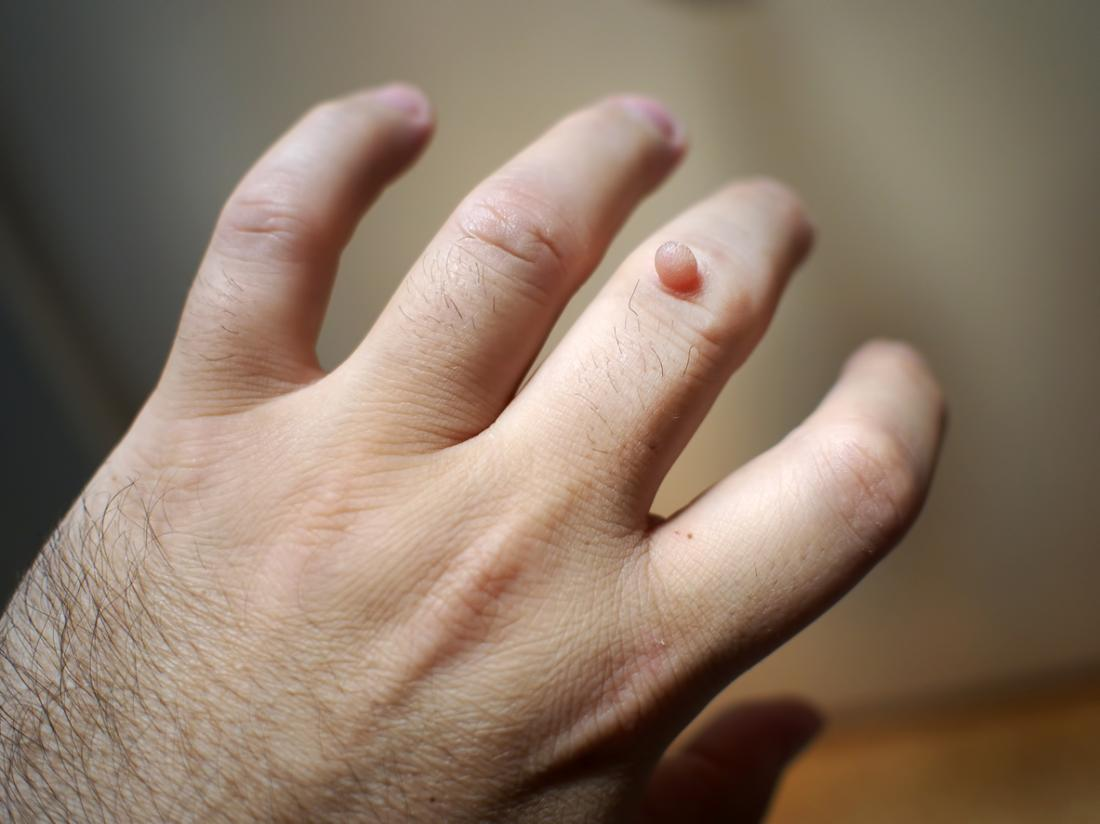 warts on hands and pregnancy viermi anisakis