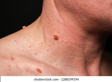how to remove papilloma on neck