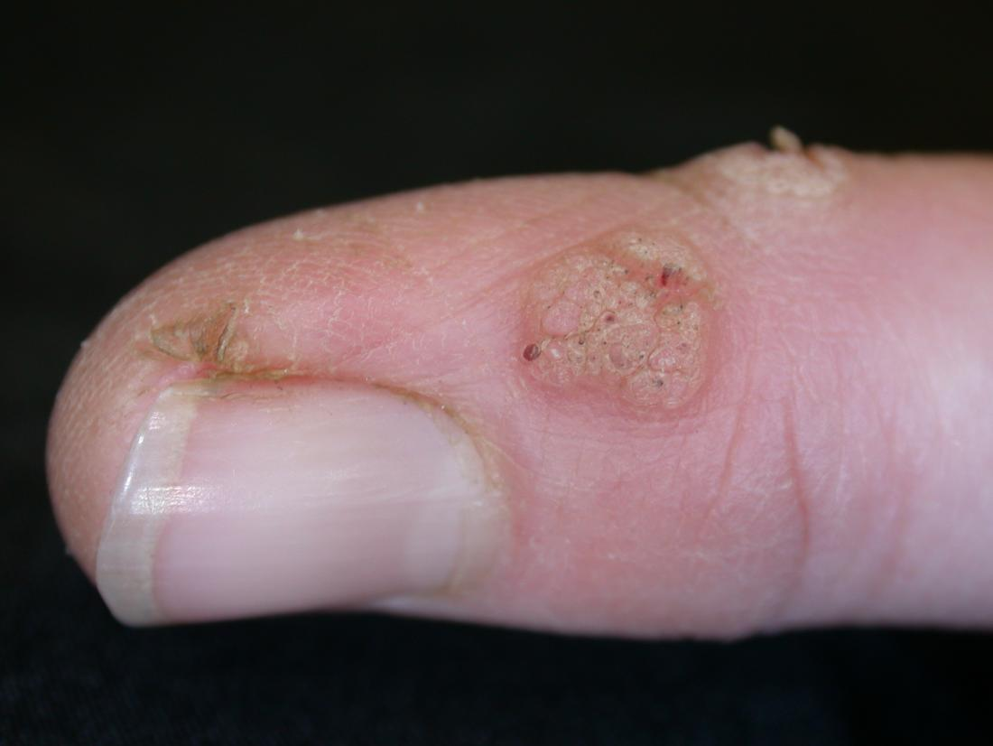 warts on hands and fingers