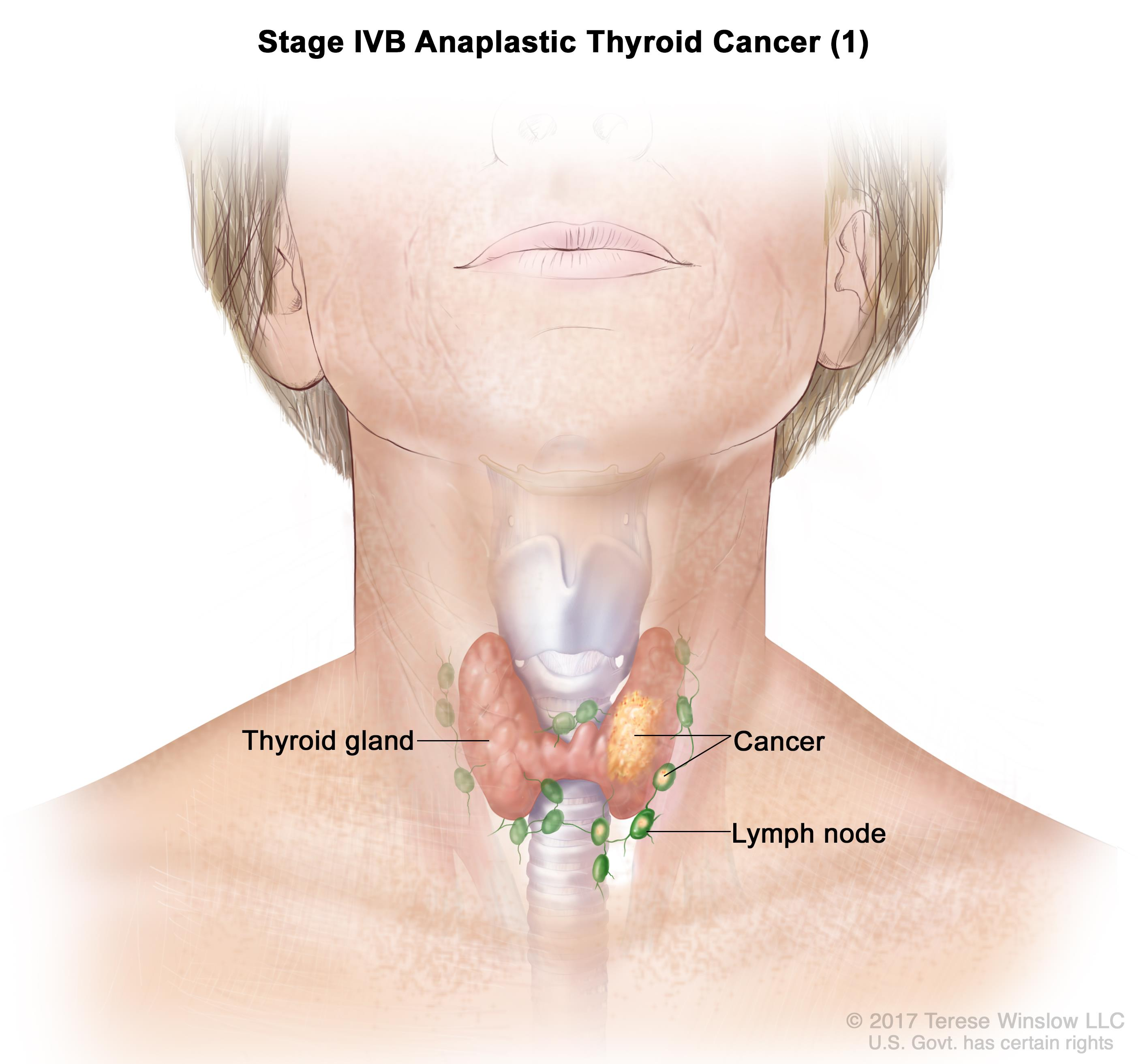 can papillary thyroid cancer kill you que es papiloma vacuna